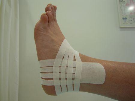 Tobillo: Técnica Ligamentosa con Corte Linfático