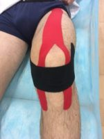 Aplicación en isometría de vendaje neuromuscular sobre el aparato extensor de la rodilla.