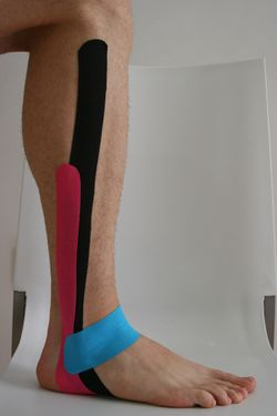 Abordaje de la inestabiliad de tobillo con vendaje neuromuscular en fisioterapia