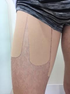 Choque Femoro Acetabular con vendaje neuromuscular en una sesión de fisioterapia