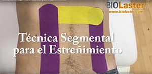 Técnica segmental para estreñimiento
