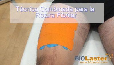 Técnica combinada: técnica fascial con técnica de aumento de espacio para la Rotura Fibrilar