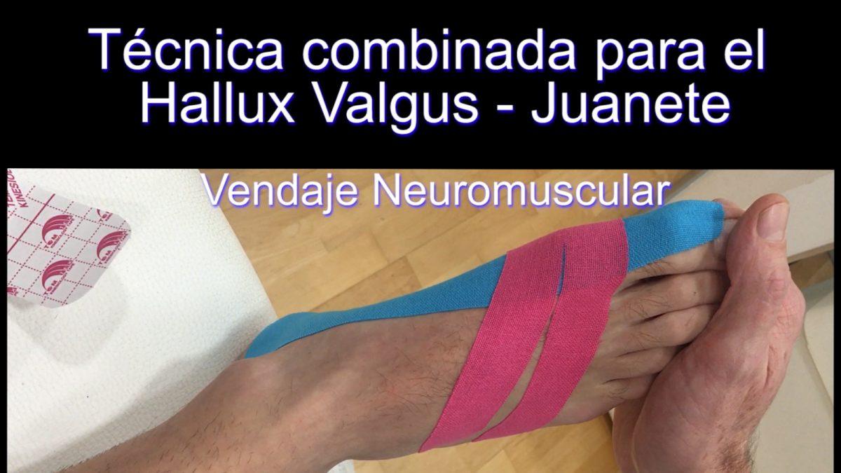 Hallux Valgus: Técnica muscular junto a técnica fascial
