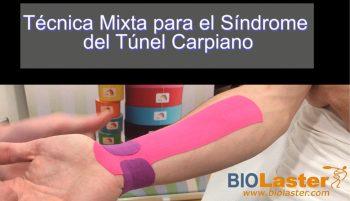 Sindrome del túnel carpiano: Aplicación de vendaje neuromuscular.