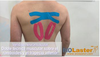 Doble técnica muscular: Romboides-Trapecio Inferior