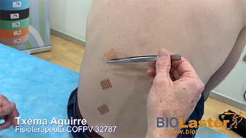 Cross Taping: Inhibición para erectores lumbares