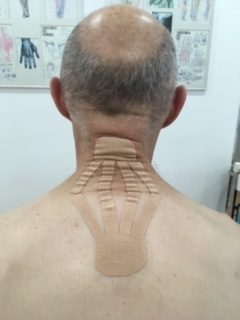 Técnica linfática cervical: Variante