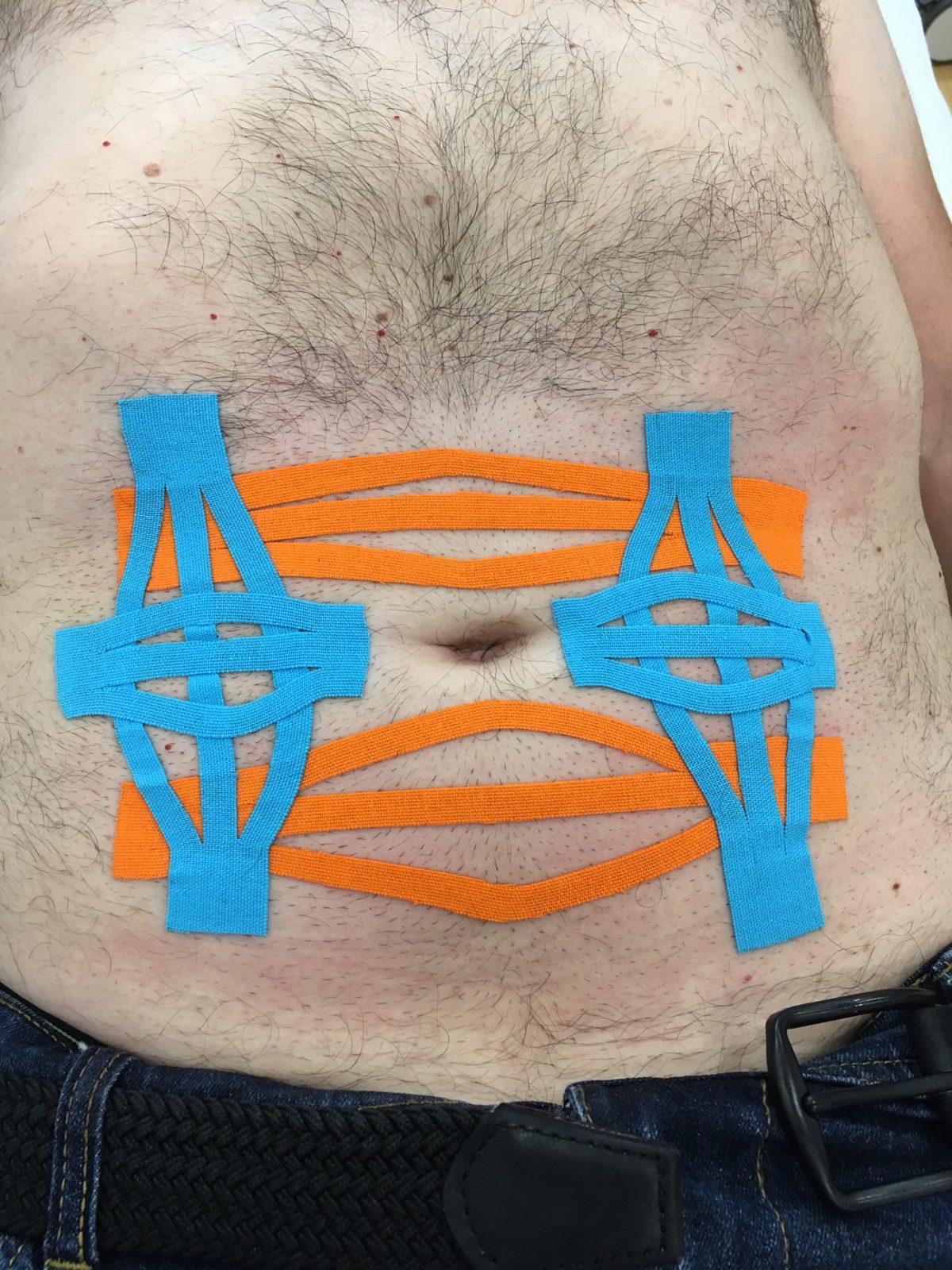 Retracción fascial abdominal con técnica de espacio