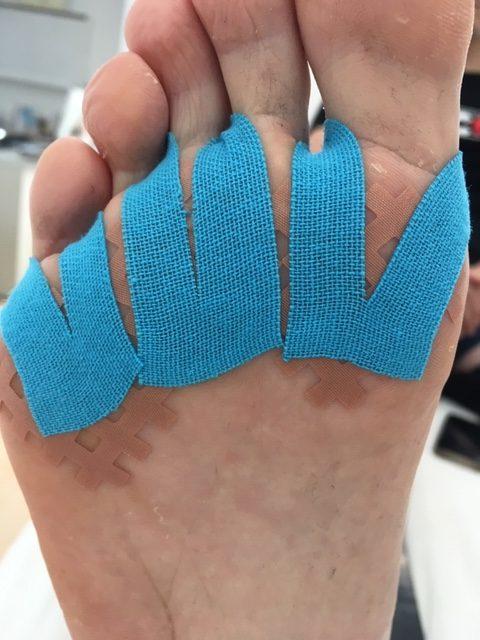 Metatarsalgia de apoyo: tratamiento con cross tape y vendaje neuromuscular