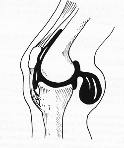 Una Torsion De Rodilla Blog Sobre Trauma