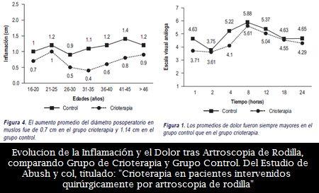 La Crioterapia, una efectiva modalidad de Disminuir la Temperatura Intraarticular, el Dolor y la Inflamación tras Artroscopia de Rodilla