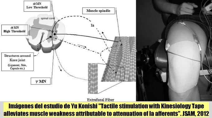 La Estimulación Táctil con Kinesiology Tape disminuye la debilidad muscular atribuible a la atenuación de las fibras aferentes Ia