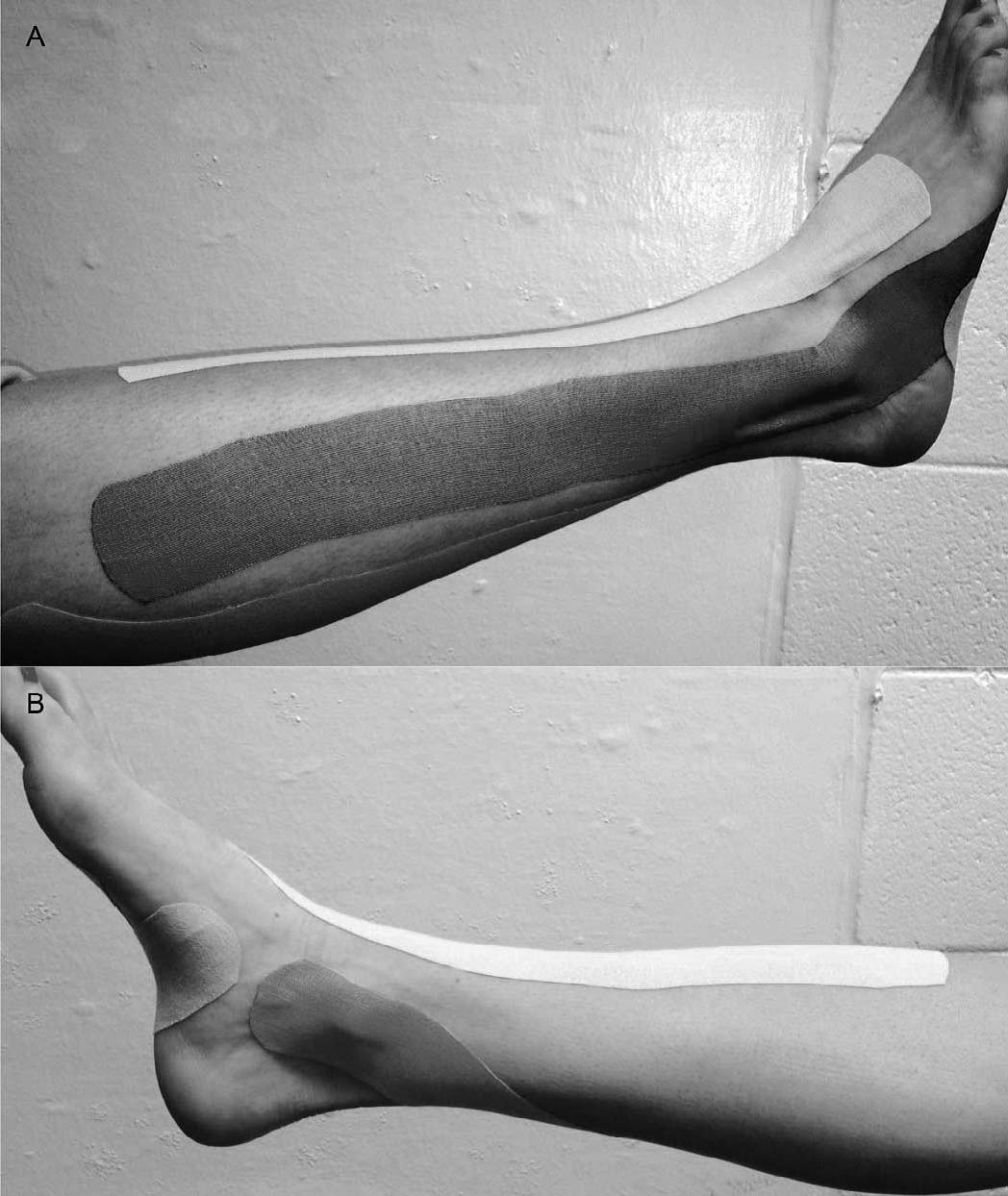 Uso de Kinesiotaping y Equilibrio en pacientes con inestabilidad crónica de tobillo