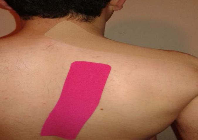 Efecto del Kinesiotaping de Trapecio en dolor, movilidad funcional del hombro y deslizamiento lateral escapular en atletas con síndrome de compresión