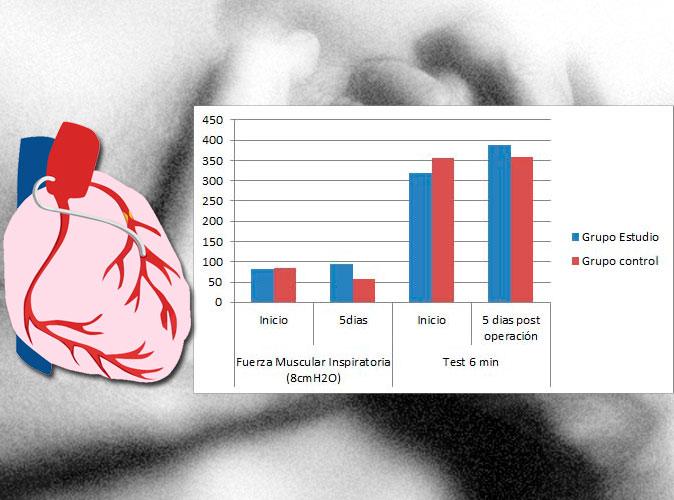 El entrenamiento de la musculatura inspiratoria mejora la recuperación tras operación de bypass coronario