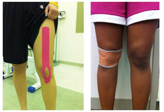 Comparación entre Kinesiotaping y técnica McConnell  en el dolor anterior de rodilla