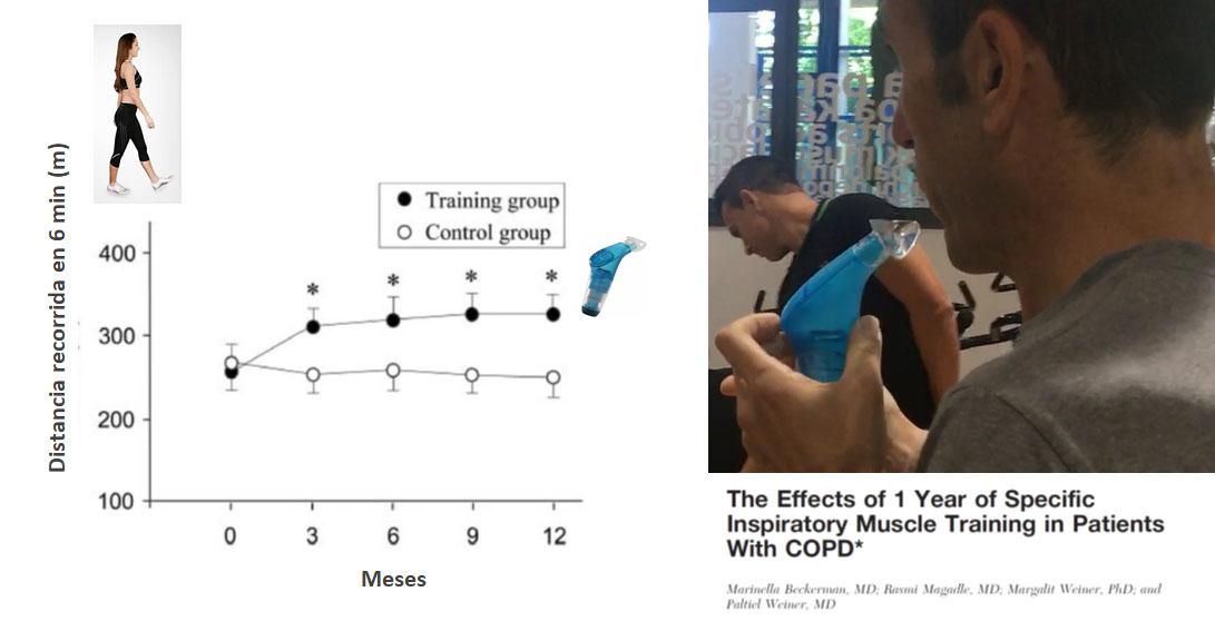 En EPOC el Entrenamiento Respiratorio Mejora la Capacidad de ejercicio en un 20%