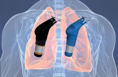 El Entrenamiento Muscular Inspiratorio mejora la Capacidad de Ejercicio transportando Carga Torácica (mochila)
