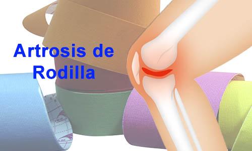 Beneficios a corto plazo de la Aplicación del Kinesiotaping en la Rodilla Artrosica