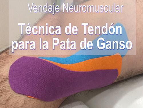 Tratamiento de la Pata de Ganso Mediante Vendaje Neuromuscular