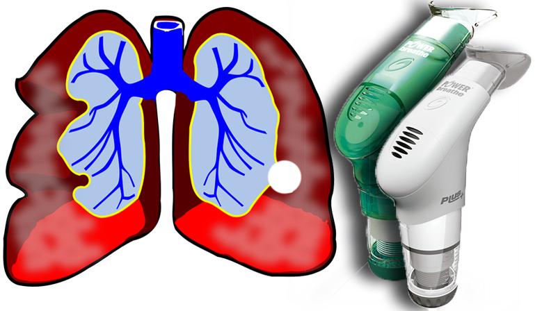 Entrenamiento Inspiratorio en asmáticos: mejoría de calidad de vida, funcionalidad y disminución de síntomas