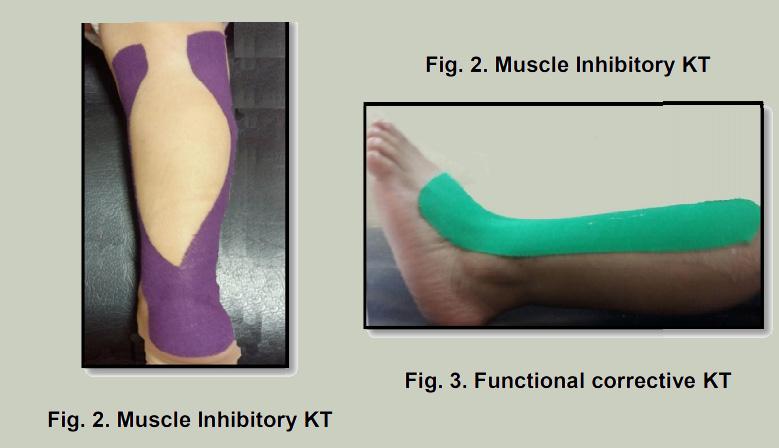 Kinesiotaping aplicado en el tobillo espástico de niños con parálisis cerebral. Estudio comparativo