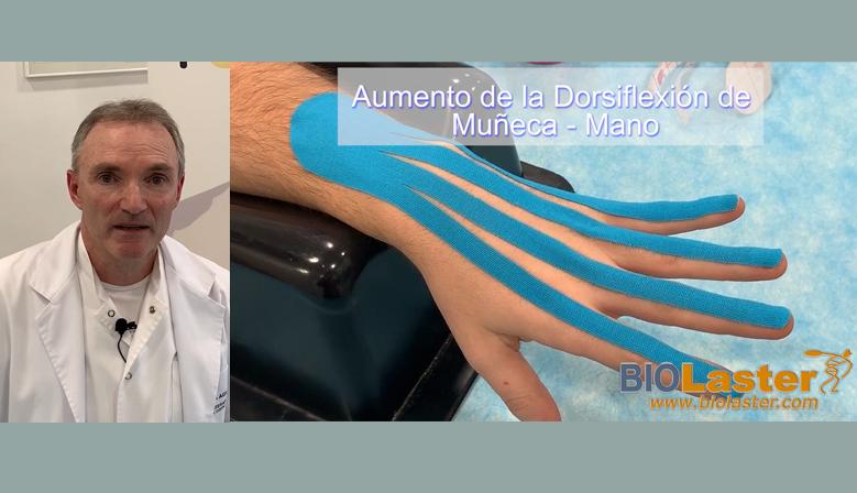 Facilitación de la Dorsiflexión de la Muñeca mediante Vendaje Neuromuscular