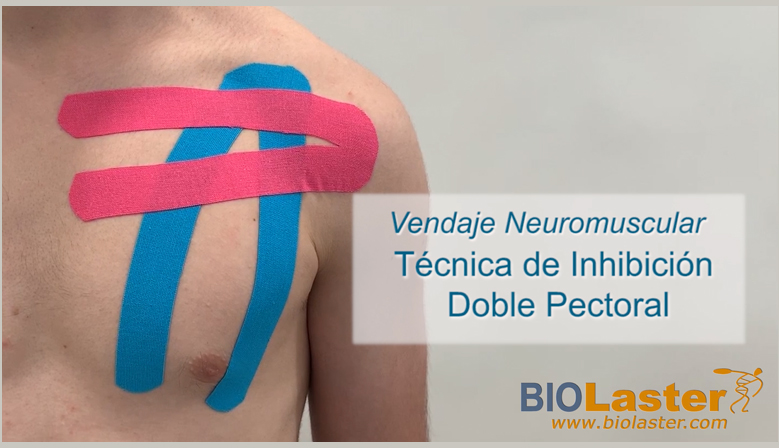 Vídeo: Aplicación de Vendaje Neuromuscular en el Pectoral