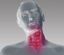 producto ortopedia esguince cervical traccion dolor cuello