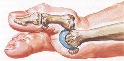 dolor en el arco del pie y dedo gordo