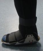 pierna rotura tendon aquiles inmovilizacion